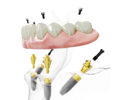 Implantes en Las Plamas
