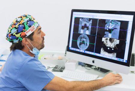 Estudio implantológico en Las Palmas