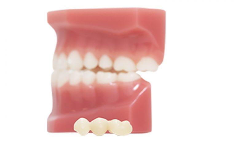 foto de un prototipo de dientes