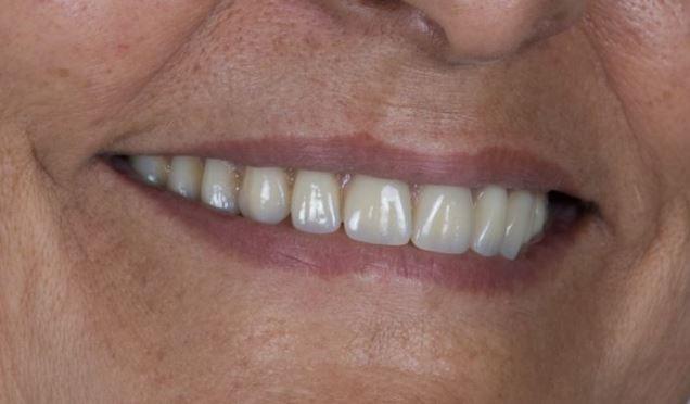 Dentadura en Las Palmas